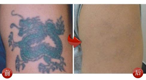 激光洗纹身感染,有脓,怎么办?图片